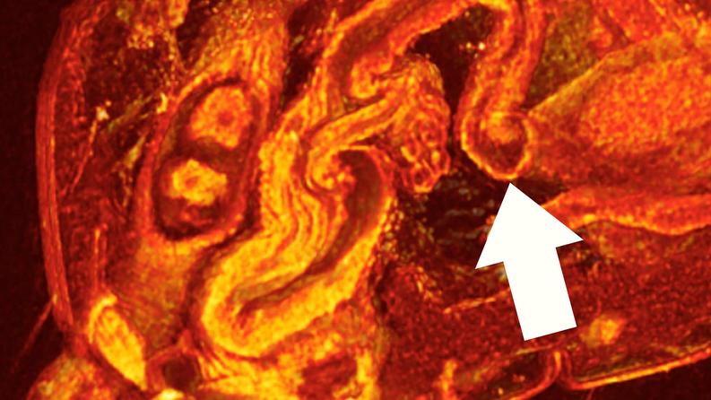 Kuvat paljastivat, että naaraan munanjohtimessa on tiukka silmukka yhteydessä munasarjaan. Tässä kohdassa ilmenee supistumista ja rentoutusta parittelun jälkeen, jonka avulla hallitaan ja ajoitetaan munasolujen liikettä munasarjasta. Kuva: Wolfner Lab