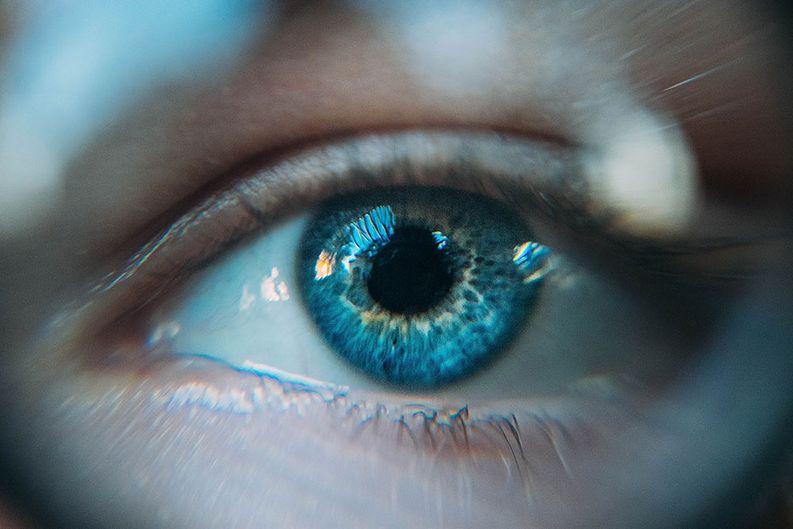 Jopa 40 %:lla suomalaisista on kuivan silmän oireita.