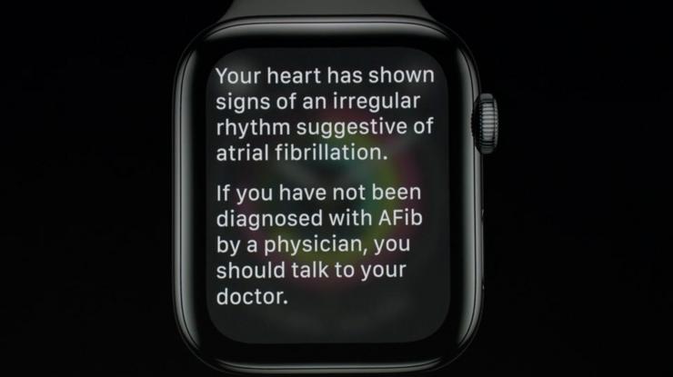 Apple Watch Series 4 osaa huomauttaa sydämen epätavallisesta toiminnasta.