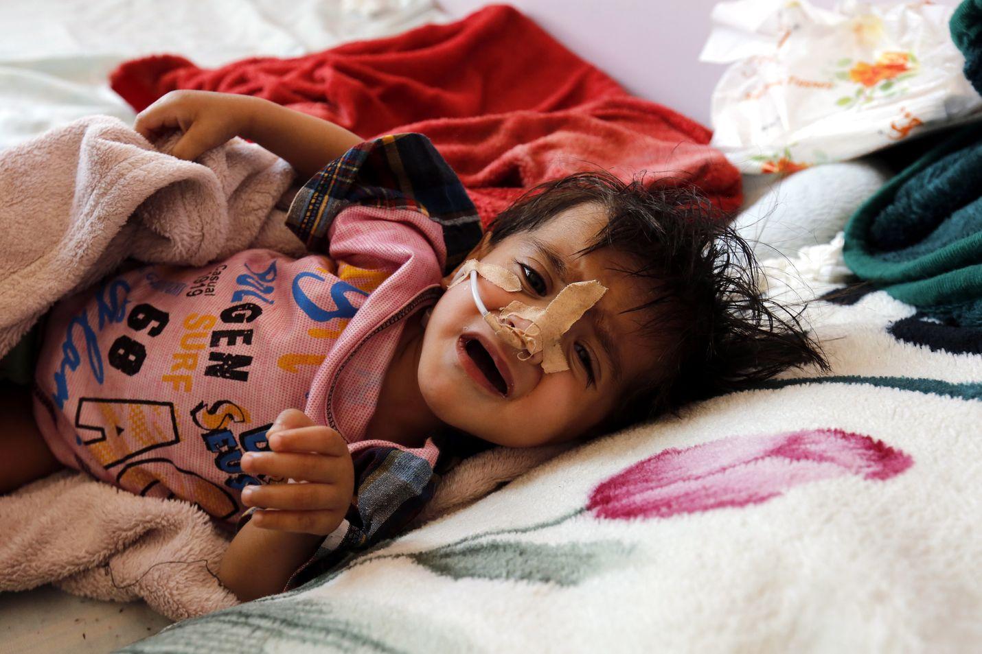 Sodan tulos. Aliravittu lapsi makaa sairaalassa Jemenin pääkaupungissa Sanaassa 18. maaliskuuta. Raporttien mukaan yli kaksi miljoonaa lasta kärsii Jemenissä akuutista aliravitsemuksesta.