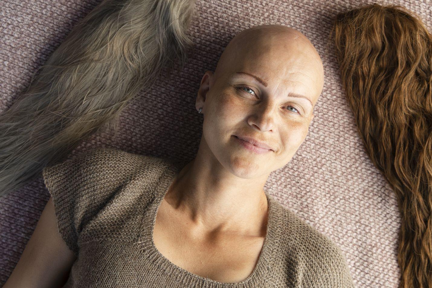 Alopeetikko Una Floor oli vain kahdeksanvuotias, kun hänen hiuksensa alkoivat lähteä. Lapsena ei ollut helppo olla erilainen kuin muut.
